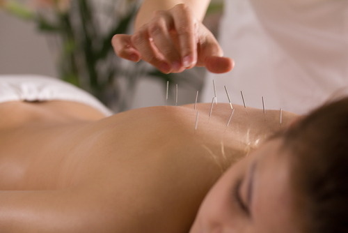 Acupuncture for Addiction Recovery